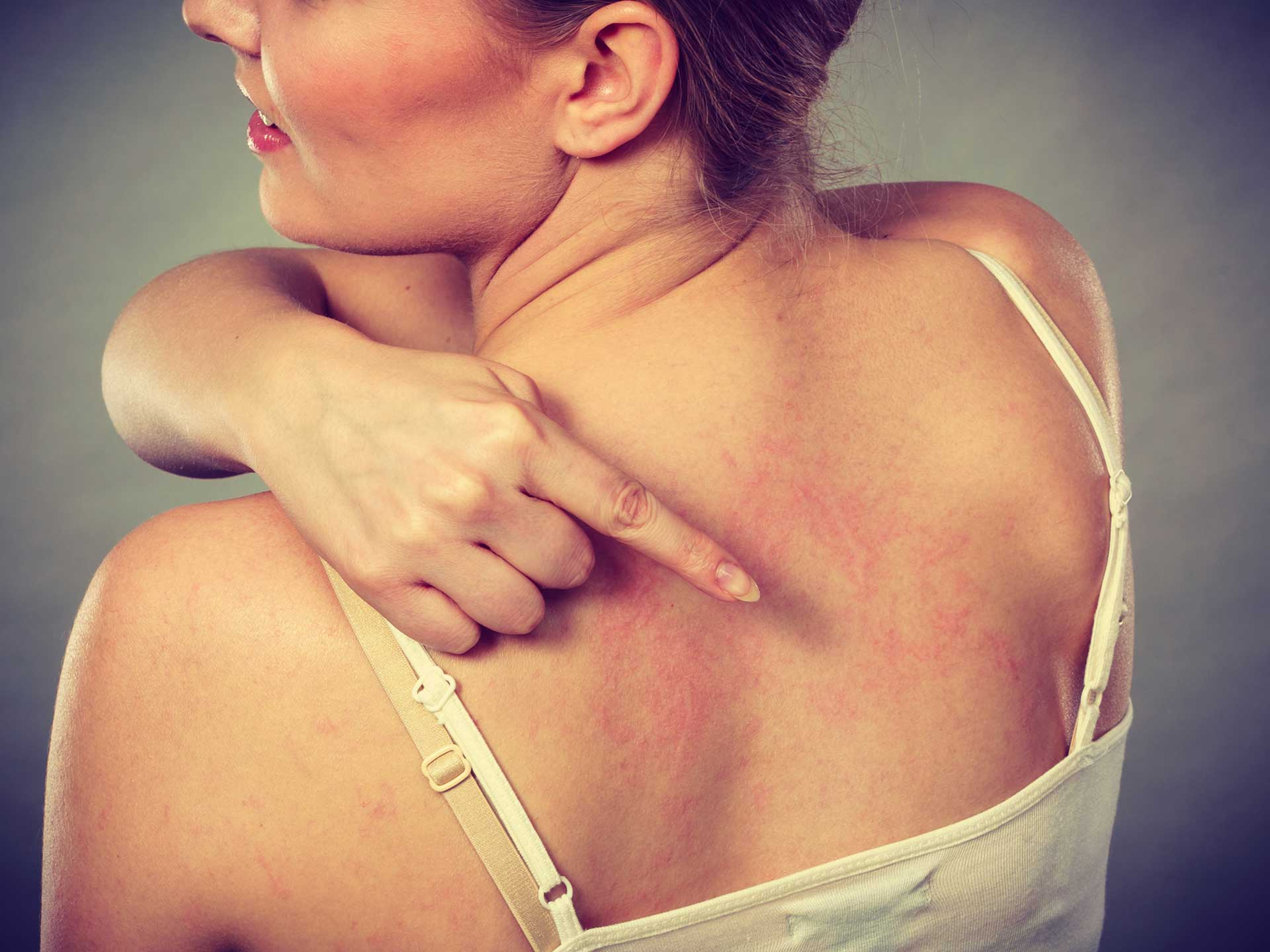 Malattie della pelle